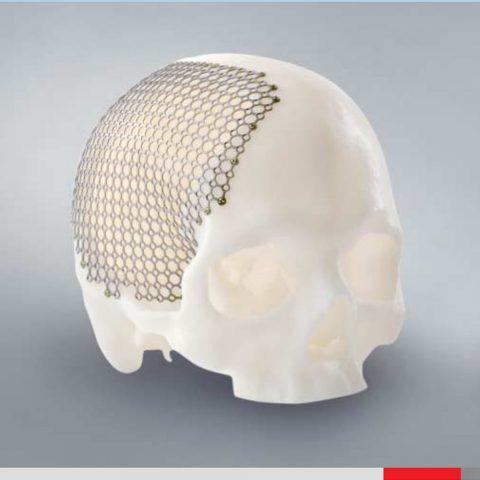 individual_implants